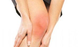 Ушиб коленного сустава