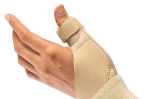 Основные симптомы перелома пальца на руке