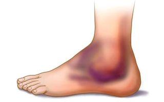 Как долго заживает растяжение связок голеностопного сустава?