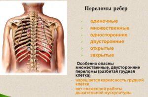 Классификация переломов ребер