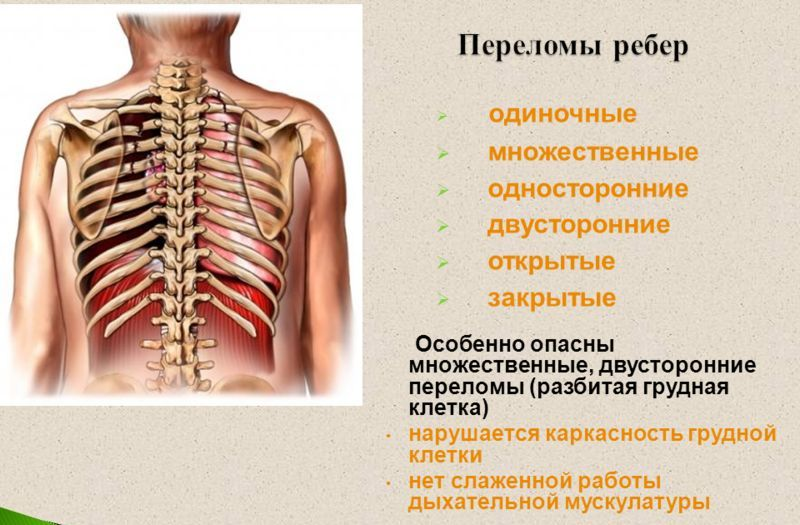 Перелом ребер: виды, симптомы и лечение, первая помощь