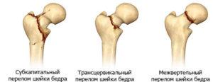 Классификация перелом шейки бедра
