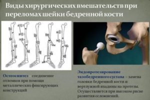 Хирургическое вмешательство при переломах шейки бедренной кости