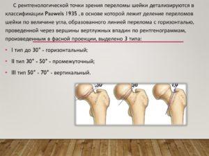 Виды переломов шеки бедра