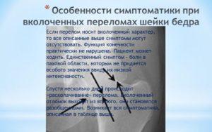 Симптомы переломов шейки бедра