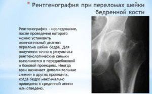 Рентгенография при переломах шейки бедра