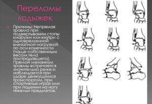 Причины переломов лодыжек