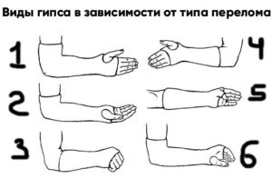 Наложение гипса в зависимости от типа перелома