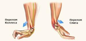 Виды переломов лучевой кости в типичном месте