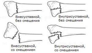 Перелом лучевой кости без смещениям