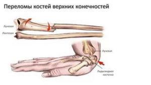 Переломы костей верхних конечностей