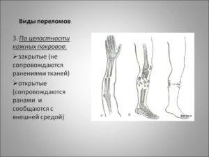 Виды переломов пальца