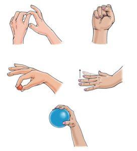 Реабилитация переломов пальцев