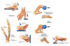 Профилактика переломов пальцев