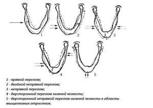Классификация переломов нижней челюсти