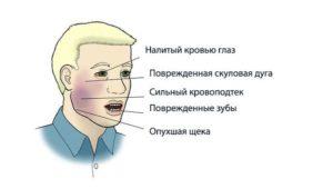 Симптомы перелома челюсти