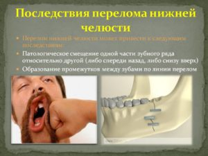 Последствия перелома нижней челюсти