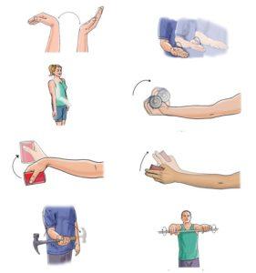 ЛФК после перелома руки