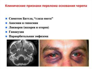 Клинические признаки перелома основания черепа