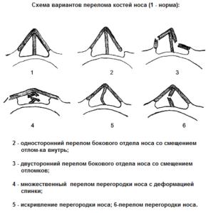 Классификация перелома носа