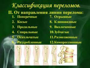Классификация переломов по напрвлению