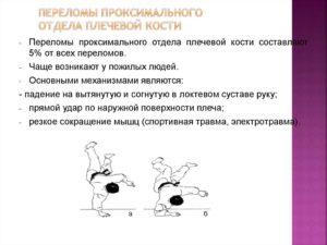 Причины переломов плечевой кости