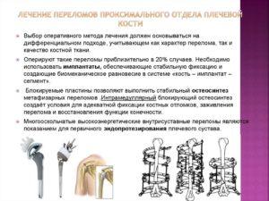 Лечение переломов плечевой кости