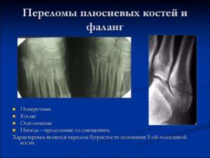 Классификация переломов плюсневой кости