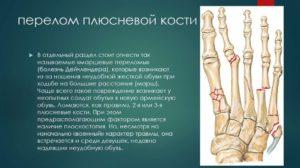 Причины перелома плюсневой кости