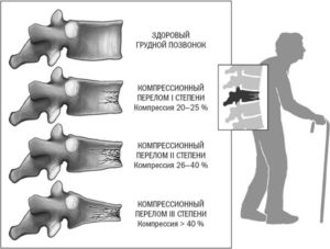 Картинка компрессионного перелома позвоночника