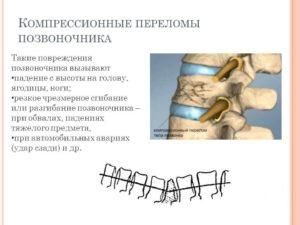 Причины компрессионного перелома позвоночника