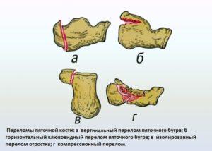 Классификация переломов пяточной кости