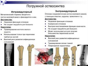 Погружной остеосинтез