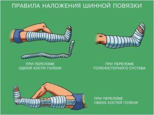 Правила наложения шинной повязки