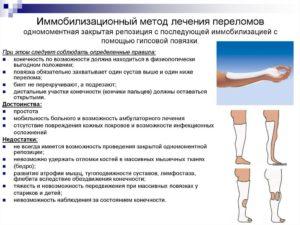 Иммобилизационный метод лечения переломов