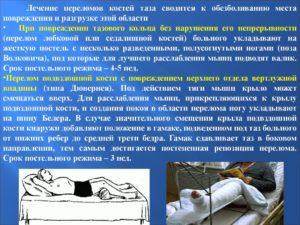 Лечение переломов таза