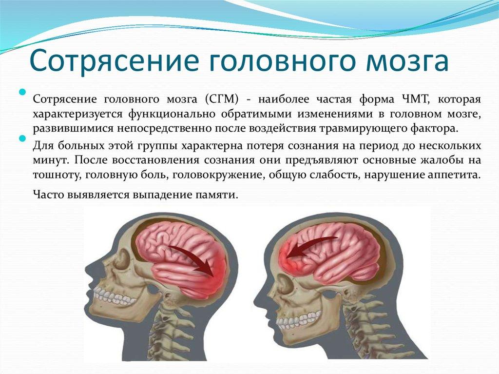 Длительность потери сознания при сотрясении головного мозга