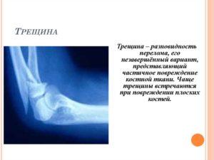 Трещина в кости