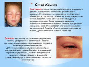 Лечение отека Квинке