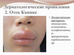 Лекарственные препараты для отека Квинке