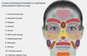 Какие проблемы от отеков на лице