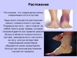 Симптомы растяжения связок стопы