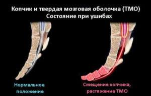 Последствия травмы копчика