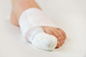 Наложение повязки при ушибе пальца ноги