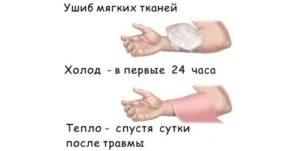 Как лечить ушиб руки