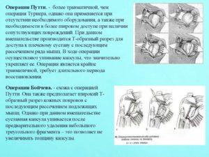 Операции вывиха плеча