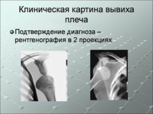 Диагностика вывиха плеча