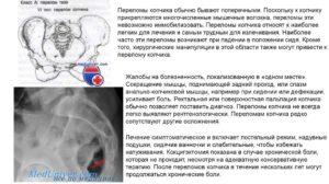 Лечение перелома копчика
