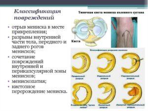 Классификация повреждения мениска