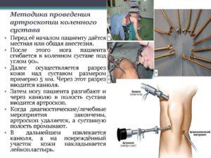 Хирургическое лечение повреждения мениска
